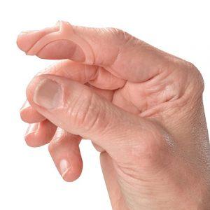 Férula para dedos - Doctor's Choice